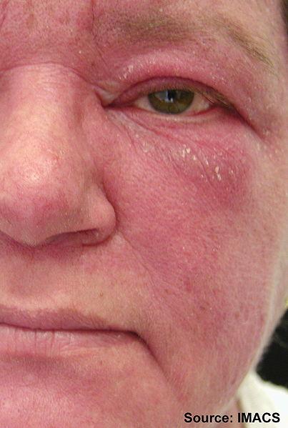 File:Dermatomyositis14.jpg