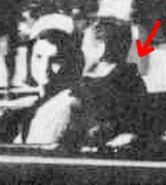 Single-bullet theory - Croft photo taken at about Zapruder frame 162 (shortly before the first bullet strike to the president) shows his jacket significantly bunched just before he is hit