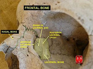 Lacrimal bone - Medial wall of the orbit. Lacrimal bone is in yellow.