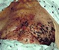 Malignant melanoma on chest.jpg