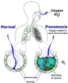New Pneumonia cartoon.png
