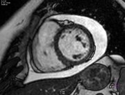 File:Primary-malignant-pericardial-mesothelioma---a-rare-cause-of-pericardial-effusion-and-consecutive-1752-1947-0003-0000009256-S4.ogv