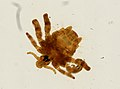 Pthirus pubis (YPM IZ 093618).jpeg