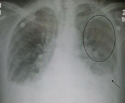 Pulmonaryedema09.JPG