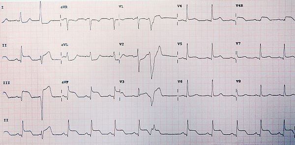 ST Segment Elevation Myocardial Infarction Unlabeled.jpg
