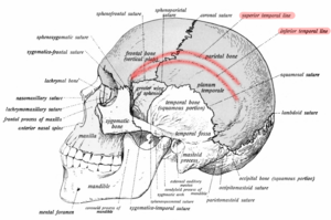 Temporal line - Side view of skull. Temporal lines shown in red.