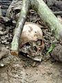 Srebrenica Massacre - Exhumed Victim - Potocari 2007.jpg