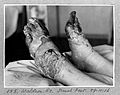 Trench feet. Wellcome L0025834.jpg
