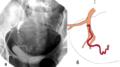 Отхождение маточной артерии под тупым углом при ЭМА.png