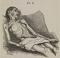 A woman suffering from extreme emaciation (anorexia nervosa) Wellcome L0073696.jpg