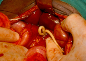 Adult ascaris worms being removed from the bile duct of a patient in South Africa.png