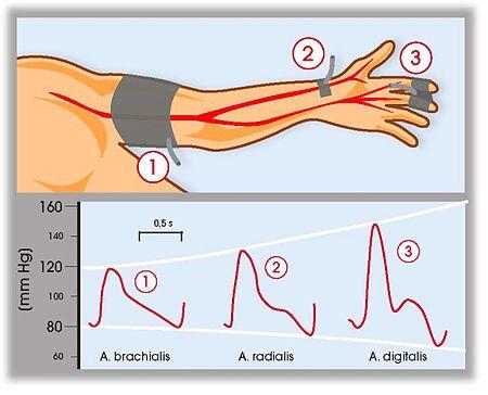 High Blood Pressure Natural Ayurvedic Home Remedies
