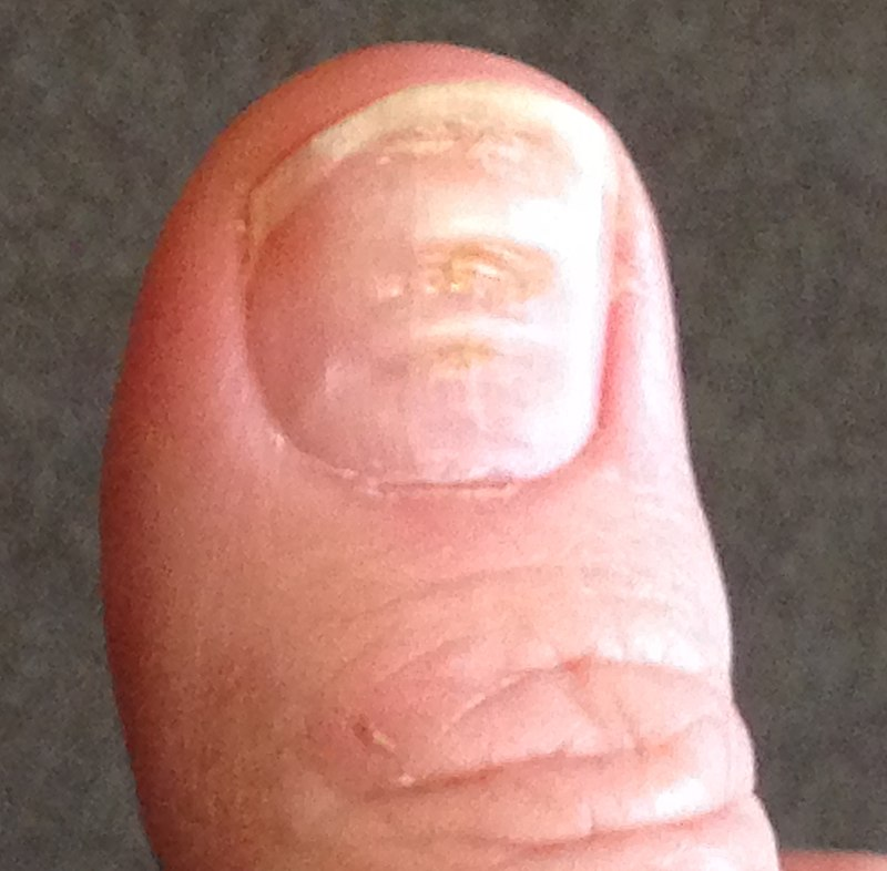 What causes beau lines on only the thumb nails? - HealthTap