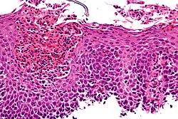 صورة مجهرية تظهر التهاب المريء اليوزيني بواسطة صبغة الهيماتوكسيلين واليوزين.