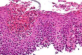 Eosinophilic esophagitis - very high mag.jpg