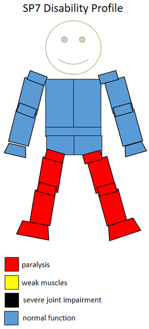 F57 (classification) - Functional profile of a wheelchair sportsperson in the F7 class.