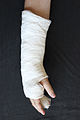 Hand in gips (Fifth Metacarpal Fracture) 2.jpg
