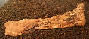 Lindow Man - Lindow Man's right foot