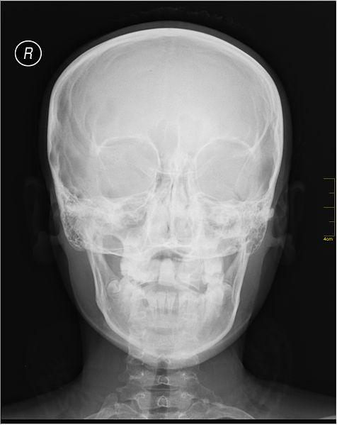File:Medical X-Ray imaging IBB05 nevit.jpg