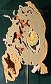 Modell eines implantierten menschlichen Eies in der 2. Entwicklungswoche.jpg