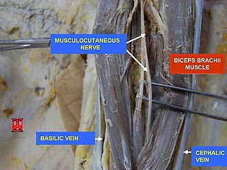 Musculocutaneous nerve - Musculocutaneous nerve on superficial dissection.