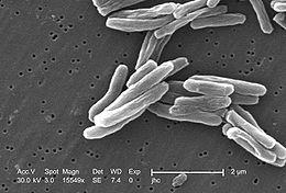 Tuberkulose Wiki