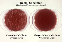Neisseria gonorrhoeae cultured on two different media types.