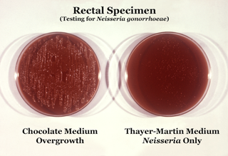 Thayer-Martin agar culture medium used in microbiology