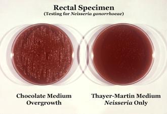Chocolate agar - Image: Neisseria gonorrhoeae 01