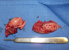 Pair of Removed Tonsils.JPG