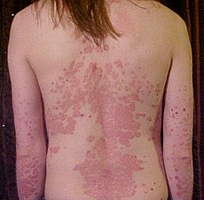230px Psoriasis on back1 Psoriasis Who Has It