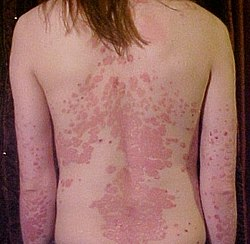 Psoriasis on back1.jpg