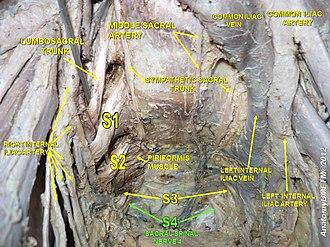 Sacral spinal nerve 4 - Image: Slide 21y