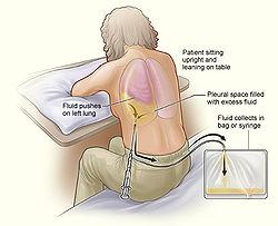 causas liquido en los pulmones