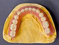 Totale Unterkieferprothese mit weichbleibender Unterfütterung 2012 PD 1.jpg