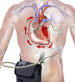 Ventricular Assist Device (Power Pack).png