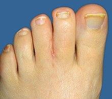 webbed toes - wikipedia, Skeleton