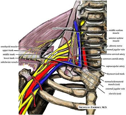 Síndrome del opérculo torácico - Wikiwand