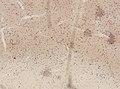 Wuchereria bancrofti (YPM IZ 093343).jpeg