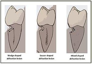 Abfraction - Figure 1