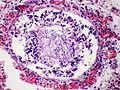 Amniotic fluid aspiration, HE 1.jpg