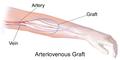 Blausen 0050 ArteriovenousGraft.png