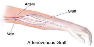 Vascular bypass - An arteriovenous graft serving as a fistula for hemodialysis access
