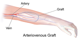 Vascular bypass - An arteriovenous graft serving as a fistula for hemodialysis access