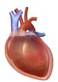 Blausen 0163 CardiacTamponade 01.png