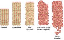 papilloma virus cancro