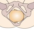 Cephalic presentation - right occipito-transverse.png