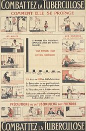 En fransk plakat fra cirka 1910'erne (venstre) og en amerikansk plakat fra 1920'erne (højre) som begge sigter på at forsøge at stoppe spredningen af tuberkulose.