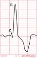 De-RBBB (CardioNetworks ECGpedia).png