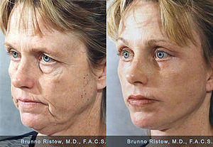 Female intrasexual competition - Face Lift 01 Dr. Ristow